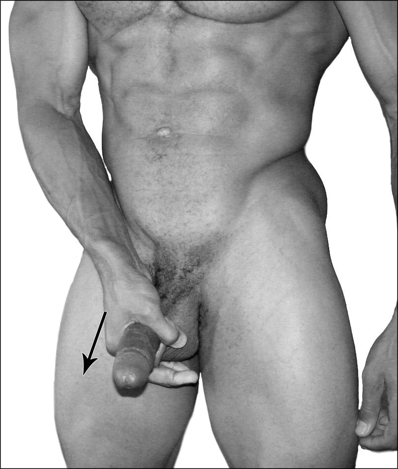 Микропенис. Скрытый половой член. Размер полового члена