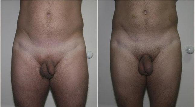 Гормоны для роста и увеличения члена тестостерон и гонадотропин