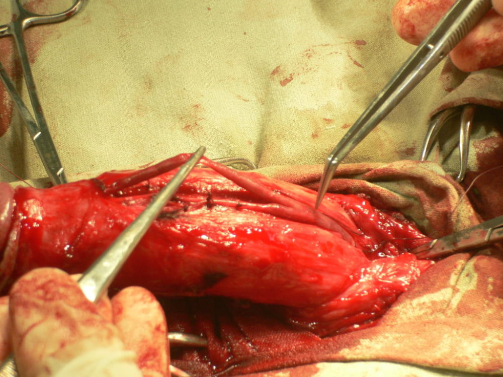 Операция увеличение полового члена утолщение и лигаментотомия