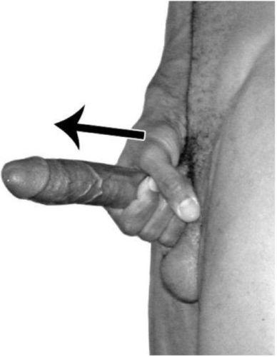 Увеличение пениса массажем
