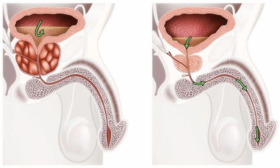 Увеличенная простата предстательная железа что делать и как уменьшить ее