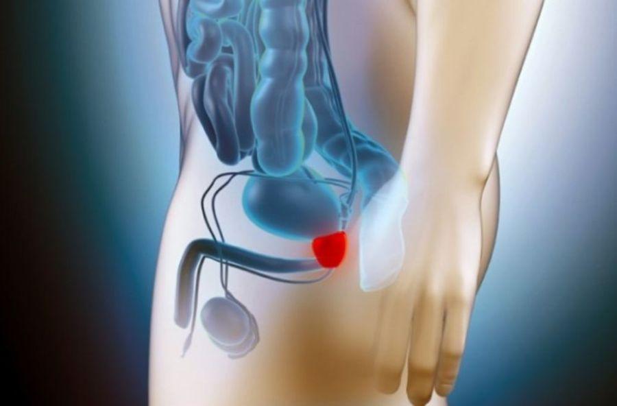 Больная простата