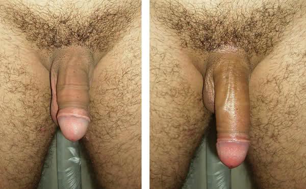 Член до и после увеличения