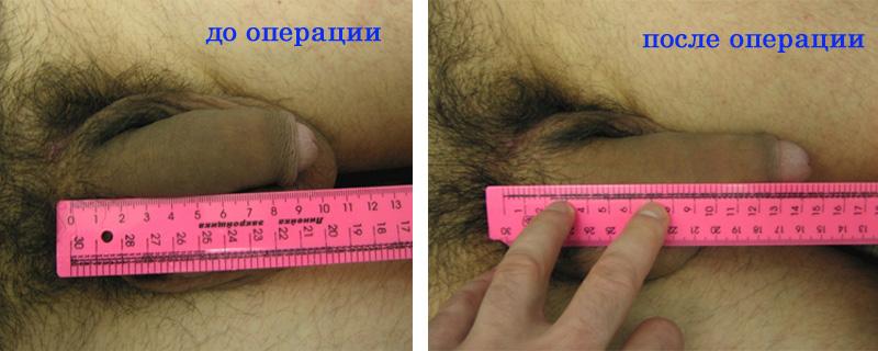 Как увеличить член (пенис) все способы увеличения полового органа мужчины