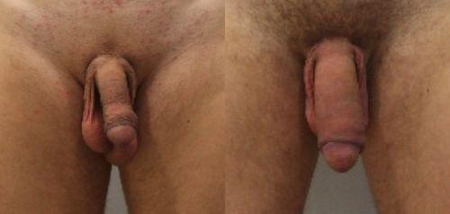 Операция по увеличению члена до и после