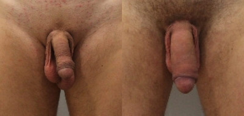 Photo male members after surgery for penis enlargement