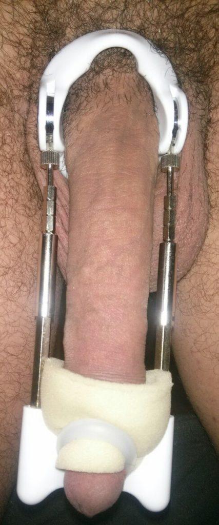 Penis გაფართოების cons