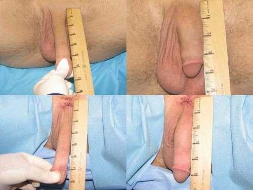 Лигаментотомия. Фото до и после