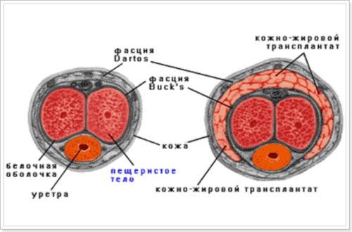 Увеличение толщины пениса при помощи липофилинга