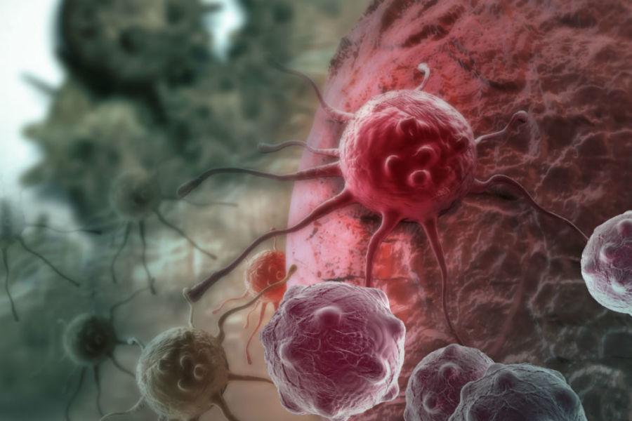 Раковые образования