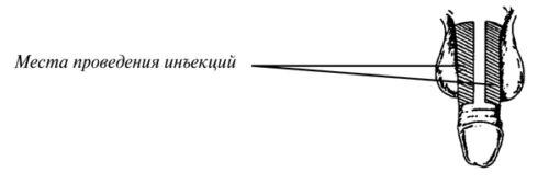 Места проведения инъекций в пенис