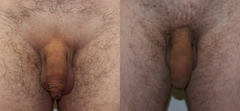 Экстендер. Фото до и после