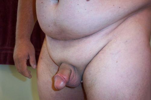 Лишний жир скрывает пенис