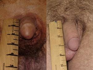 Операция по увеличению члена. До и после