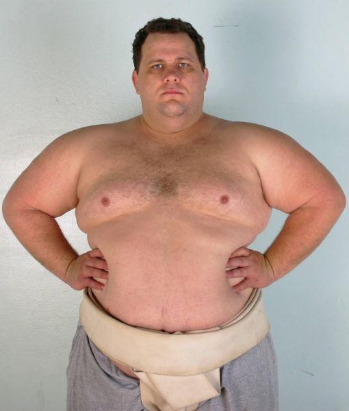 Излишняя масса тела