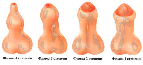 Фимоз полового члена