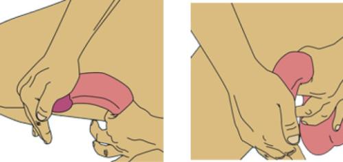 Натуральное увеличение пениса нуп