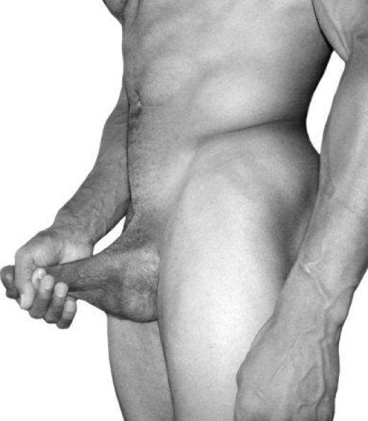 Вытягивание пениса в длину